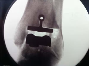 total ankle replacment2