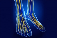 What Is Idiopathic Peripheral Neuropathy